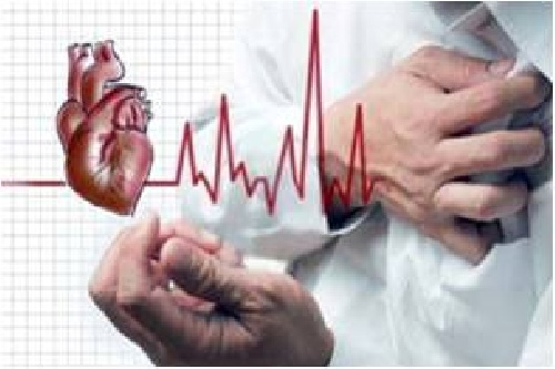 پمفلت سکته قلبی - MYOCARDIAL INFARCTION